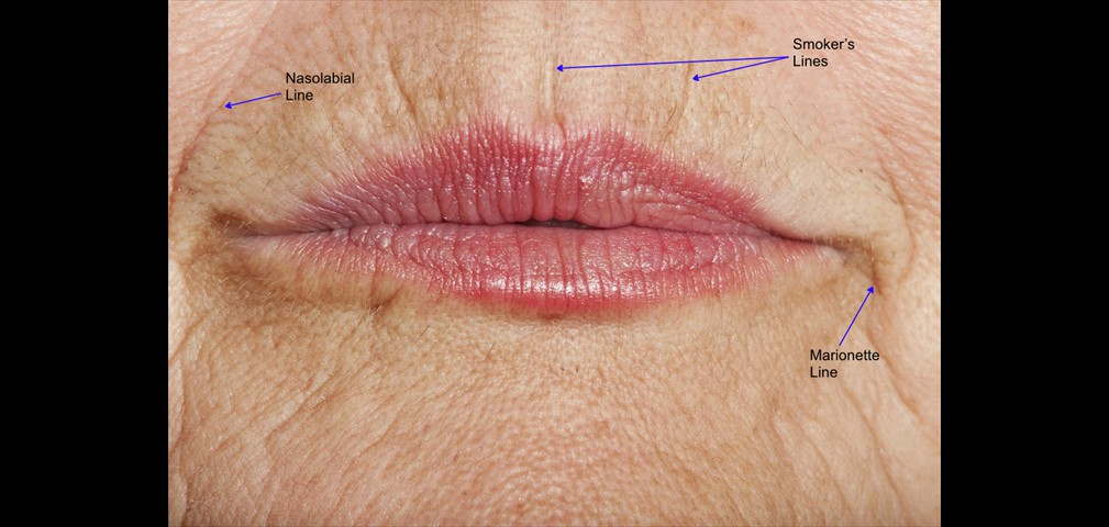 smokers lips annotated